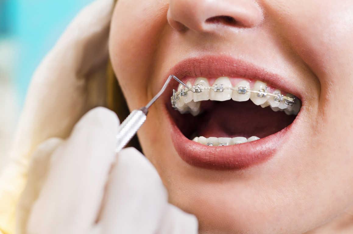 Dentistas de confianza para toda la familia