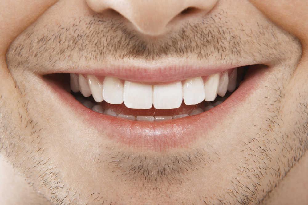 Un hombre con la dentadura perfecta